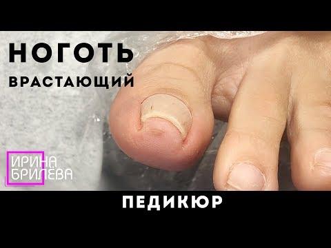 ПЕДИКЮР пальцев ⚡ Закручивающийся ноготь (ноготь, склонный к врастанию)