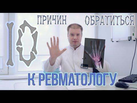 ТОП-10 Причин обратиться к ревматологу!
