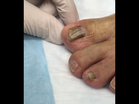 Jorge Came Back!  Toenail Fungus Treatment with Gumby & Gonzo