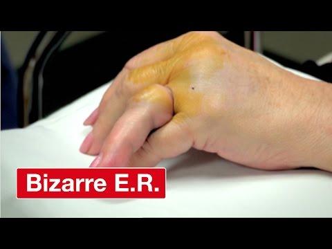 Resetting A Broken Finger - Bizarre ER