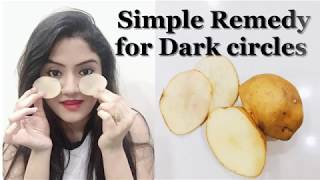 100% Natural and Effective home remedy for dark circles | In Hindi