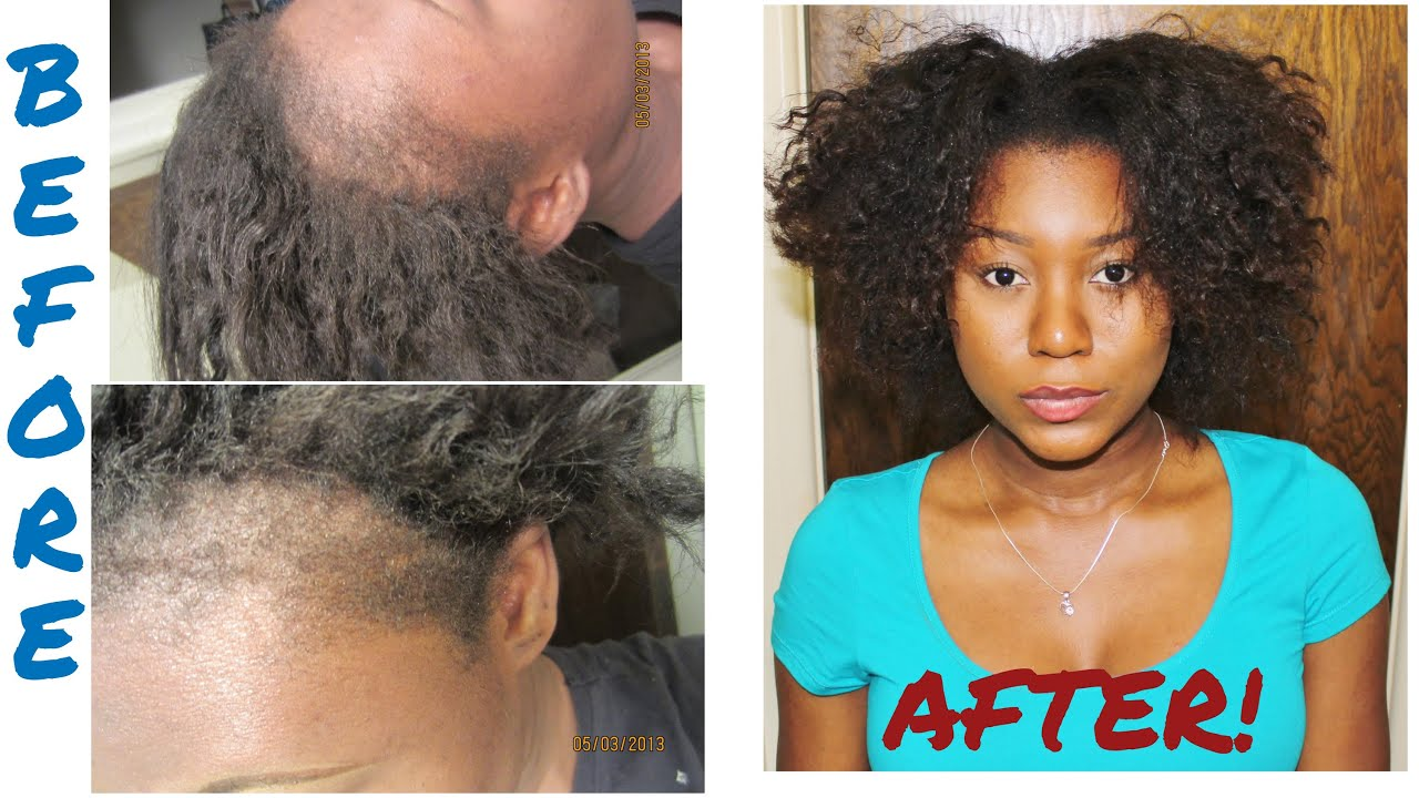 What Products To Use To Grow Natural Hair