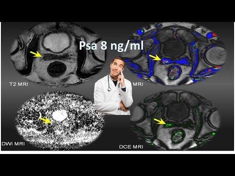 risonanza magnetica multiparametrica della prostata pisa 2016