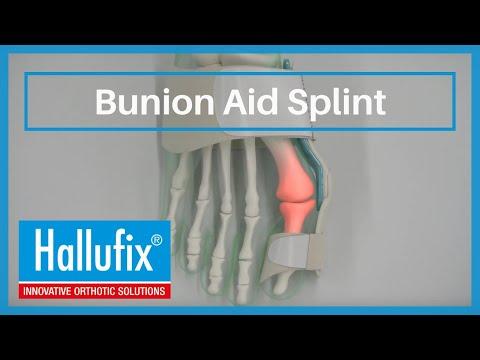 Bunion Aid Splint