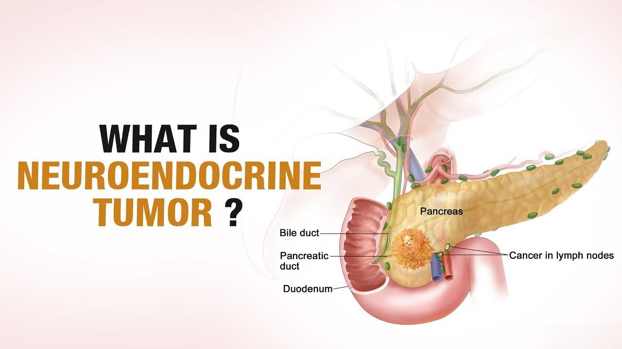 cancer of neuroendocrine)