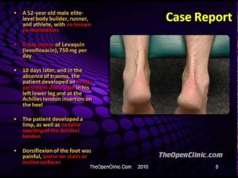 levaquin tendonitis treatment