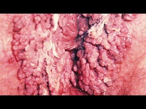 Enfermedad papiloma humano fotos 54
