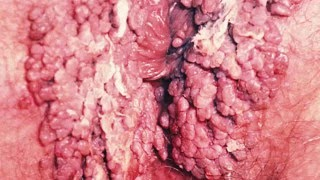 Enfermedades Venereas clamidia como se contagia la clamidia como se cura la clamidia