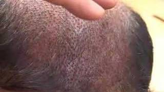HAIR TRANSPLANT:  EDUCATIONAL LECTURE 1