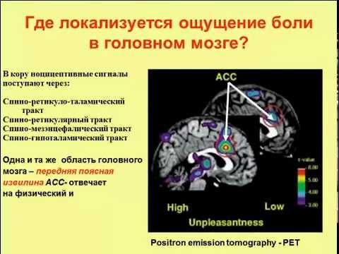 Инфаркт миокарда - Сыркин . - Практическое пособие