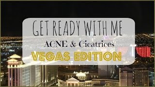 ♡ ACNE & Cicatrices Get Ready With Me - VEGAS Edition ♡