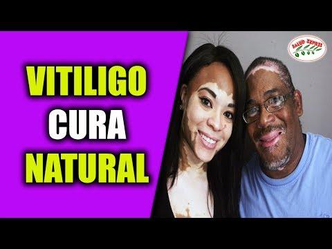 vitiligo-cura-natural-|de-esta-manera-acabas-con-el-vitiligo.