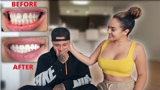 SURPRISING MY BOYFRIEND WITH BRAND NEW TEETH! ** VERY EMOTIONAL **