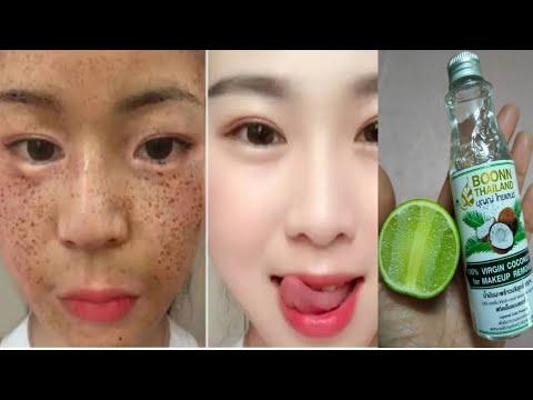 วิธีรักษาฝ้ากระ จุดด่างดำ How To Get Rid Freckles, Dark Spots, Melasma, Black Patches Fast Naturally