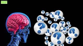 Dağınık beyin sendromu
