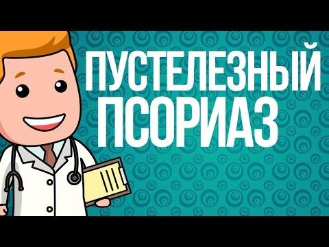 Лечение псориаза содой. Псориаз: причины