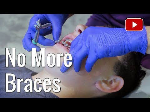 NO MORE BRACES FOR JAKHOB | ERIKTV365