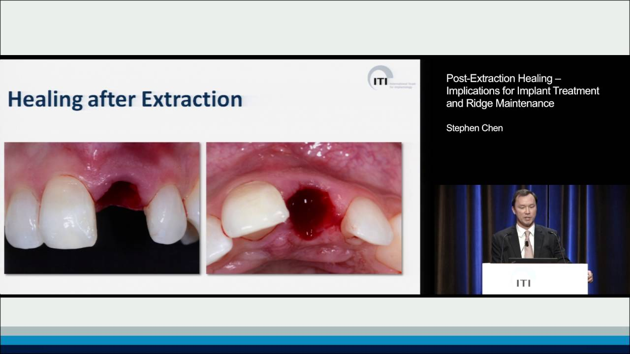 Post Extraction Healing Implications For Implant Treatment And Ridge Maintenance Stephen Chen Youtube