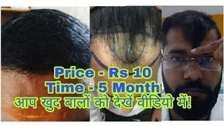 Honest Review    5 Month 18 Days Best Hair Transplant Result in 10 Rs Per Graft