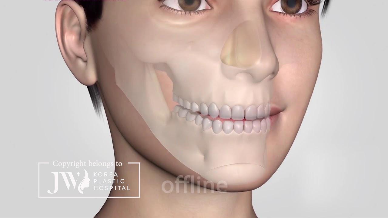 Gọt mặt v line 3D toàn diện