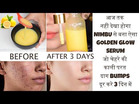 3 Days Skin