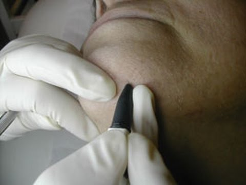 Electrolysis vs. Laser Hair Removal (Miami Beach, FL)