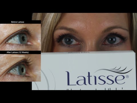 a0657a800df My Experience with Latisse | Before & After - YouTube