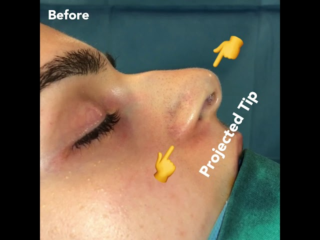 Nosejob before and after - Amazing transformation