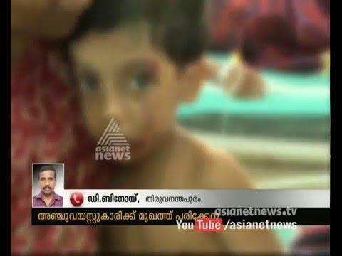 Stray dog attack against small children in Thiruvananthapuram