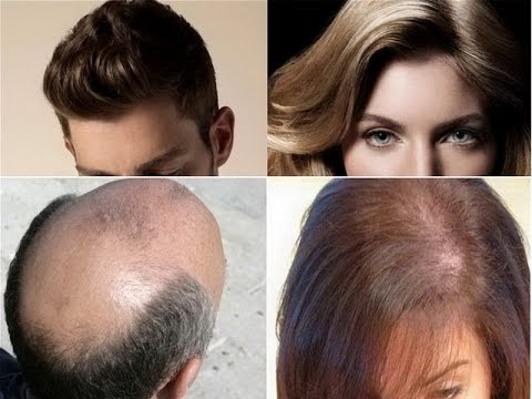 Hairstyles For Alopecia Areata : Types of hair loss alopecia areata androgenetic