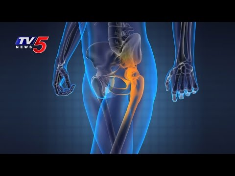 Hip Replacement Surgery - Benefits, Risks & Complications | Star Hospitals | Telugu News | TV5 News