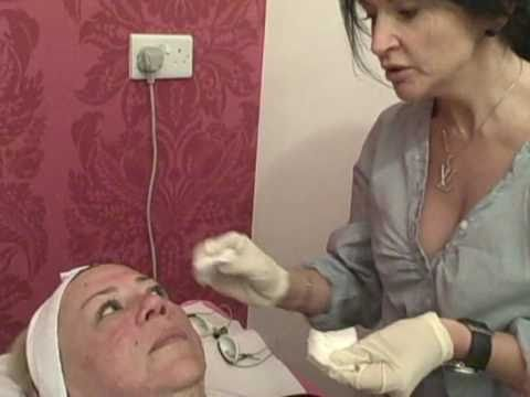 Sun Damaged Skin Treatment - Tracey Bell