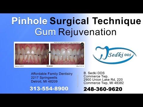 Dentist in Commerce Twp   Offering Full Service Dentistry