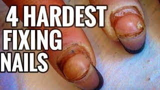 4 HARDEST TRANSFORMATIONS OF LIFES AND NAILS IN ONE VIDEO | TOUCHING MOVIE OF REAL LIFE