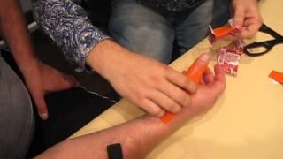 Стабилизация сустава большого пальца
