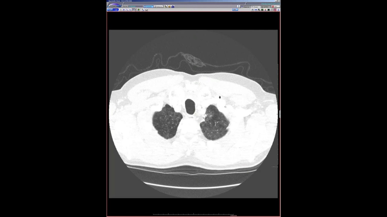 STR Cardiothoracic Case Webinar 8/15/2019