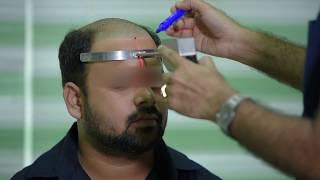 Laser hairline designing | dr aklish jain | Best hair transplant centre | Hair transplant in jaipur