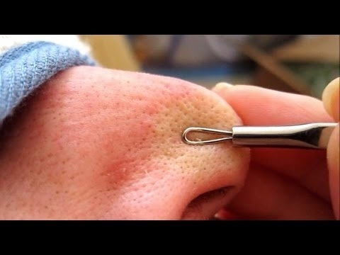 Image Result For Comedone Extractor Blackheads On Nose
