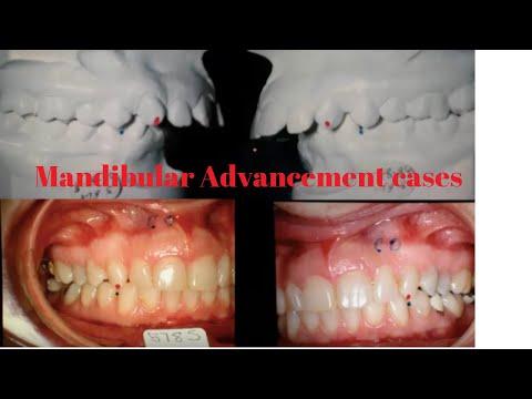 Mandibular Advancement cases