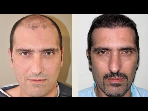 Hair Transplant Reviews Gethair