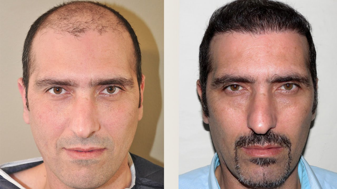 Propecia one month results