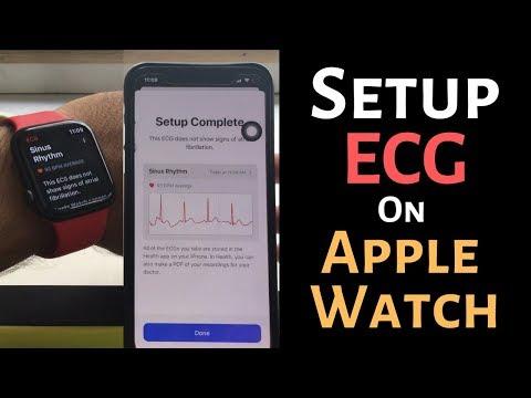 How to Setup ECG on Apple Watch 5: Hands On - Export, Delete ECG Readings