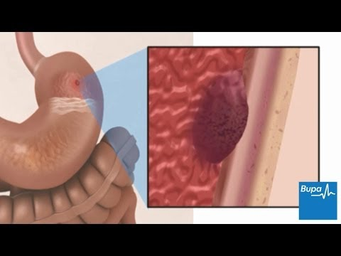 How a peptic ulcer develops