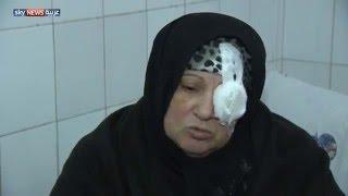 الأخطاء الطبية ظاهرة تتكرر في مصر