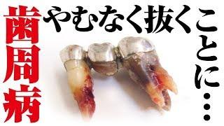 【やむなく】重度の歯周病での抜歯Tooth extraction[dentistry] [periodontitis] [cleaning] [health and wellness](重度牙周炎)