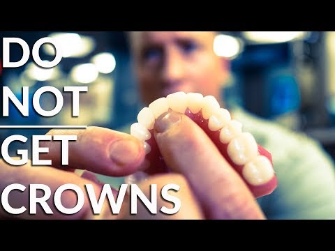Do NOT crown your teeth! - Must watch before dental work!
