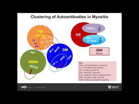 AACC 2017 Booth Presentation: Idiopathic Inflammatory Myopathies - An Update on Autoantibody Testing