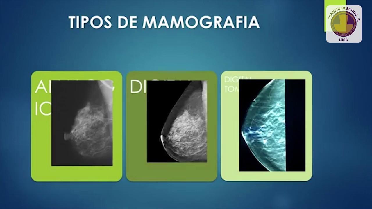 Mamografía y al Nueva Clasificación de BIRADS V Edición - Dr. Hernán Espejo Zarate