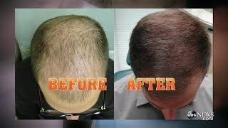 New Baldness Treatment Hair Regrowth GMA ABC PRP