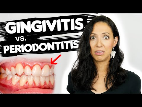 Do You Have Gingivitis or Periodontitis? | Different Stages Of Gum Disease